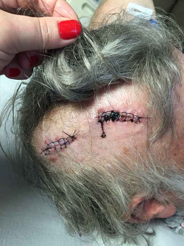 Sutures, after Burr Hole neurosurgery